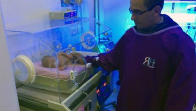 Photo of الطفلة ميرنا بحاجة للمساعدة وإنقاذها