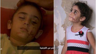 Photo of بالفيديو | عن يارا الصغيرة.. والدها يروي ما حصل معها خلال فاجعة إنفجار مرفأ بيروت