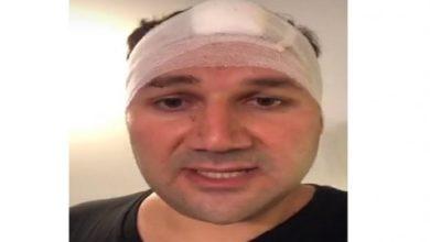Photo of بالصورة | إصابة النائب نديم الجميّل في رأسه جراء الانفجار